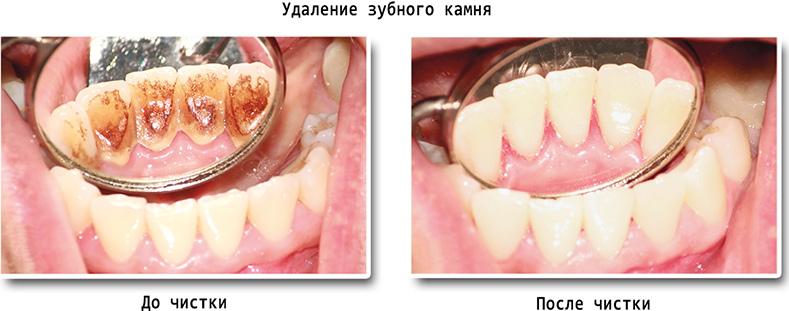 Чем удаляют зубной камень беременным