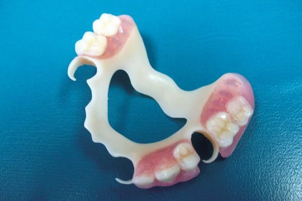 гнойного прозрачный материал для сьемных протезов зубных рассчитать